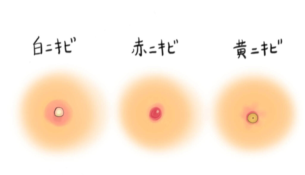 白ニキビ赤ニキビ黃ニキビ
