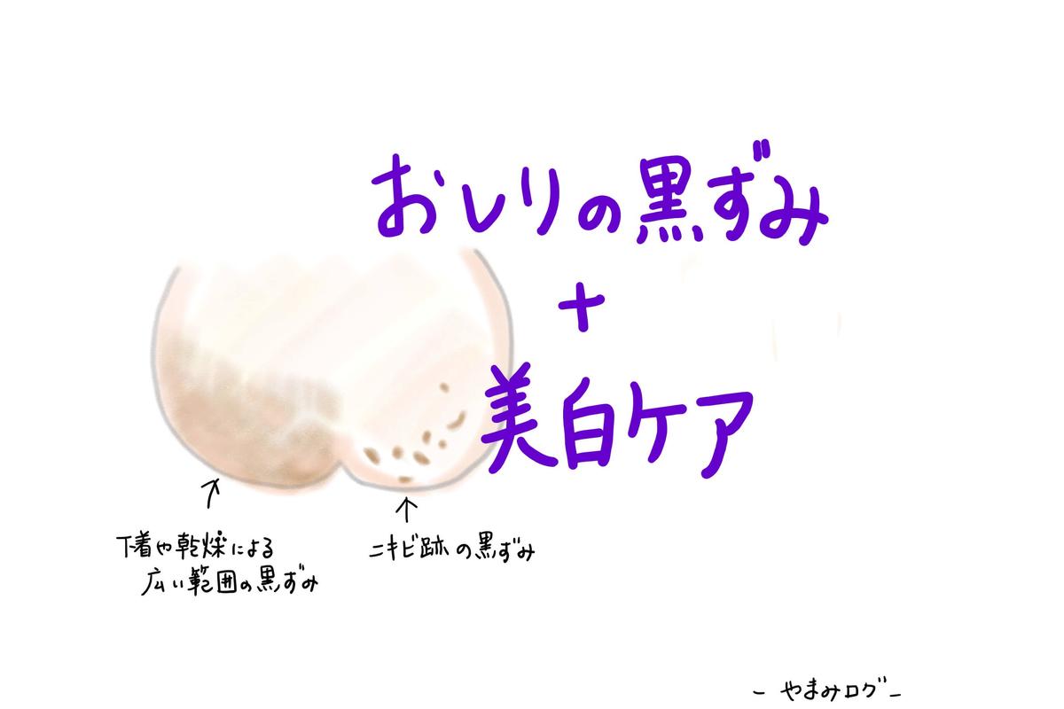 【お尻の黒ずみ】美白ケアは効果ない?メラニンを抑制して美尻を目指す方法